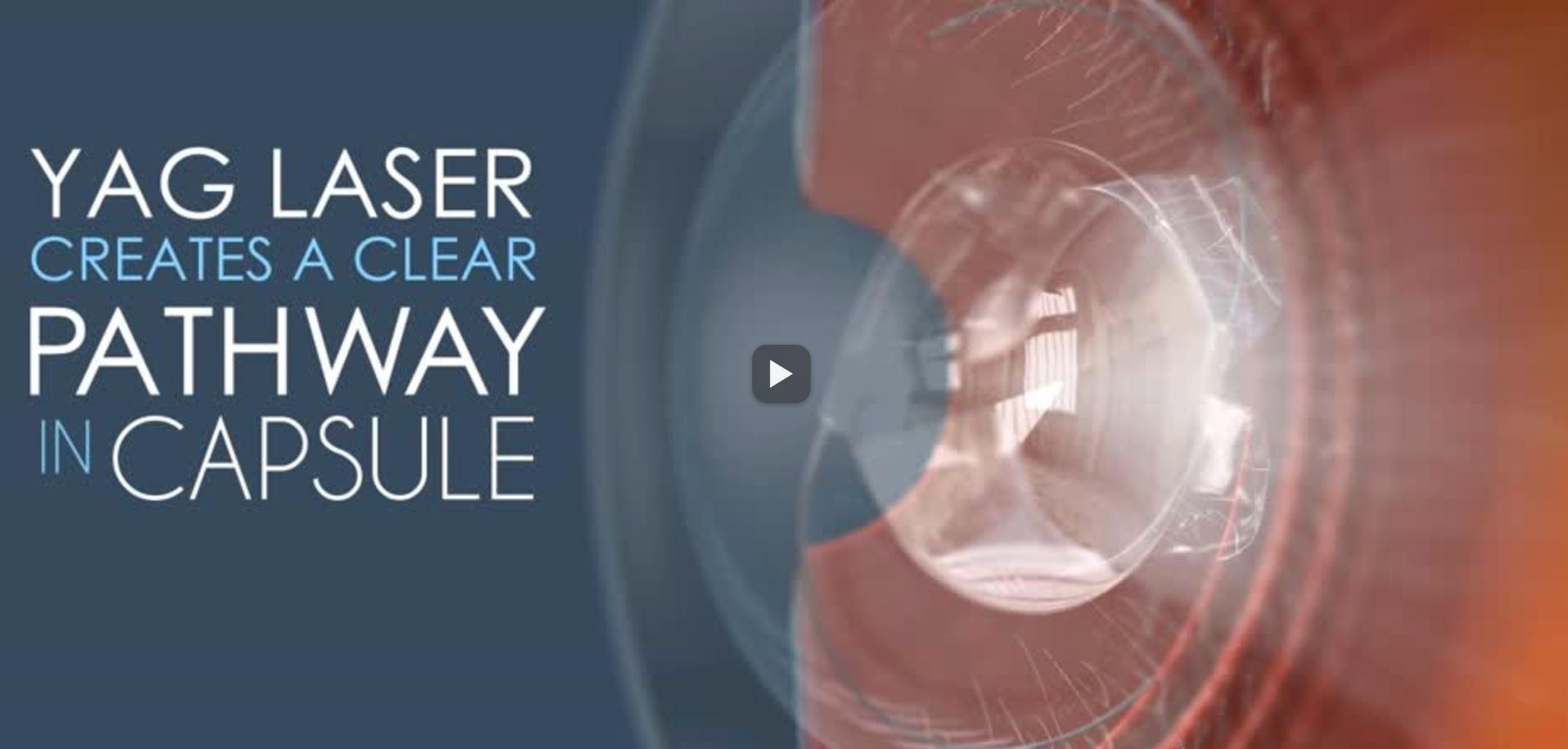 yag-cataract-video.jpg