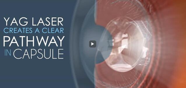 ALT: YAG cataract surgery follow-up procedure video