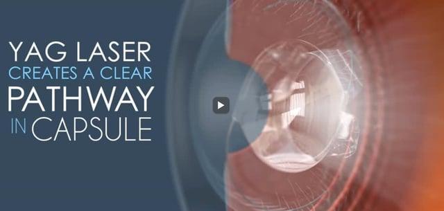 ALT: YAG cataract surgery follow-up procedure video